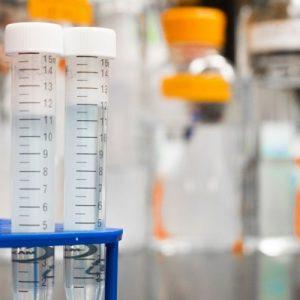 Lab equipment in chennai bangalore